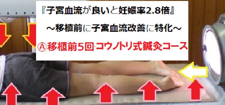 Ⓐ移植前に5回コウノトリ式鍼灸で妊娠率UPしませんか?