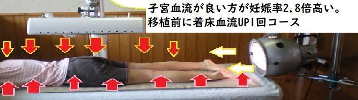 移植前に着床血流UP1回コース(初回0円)